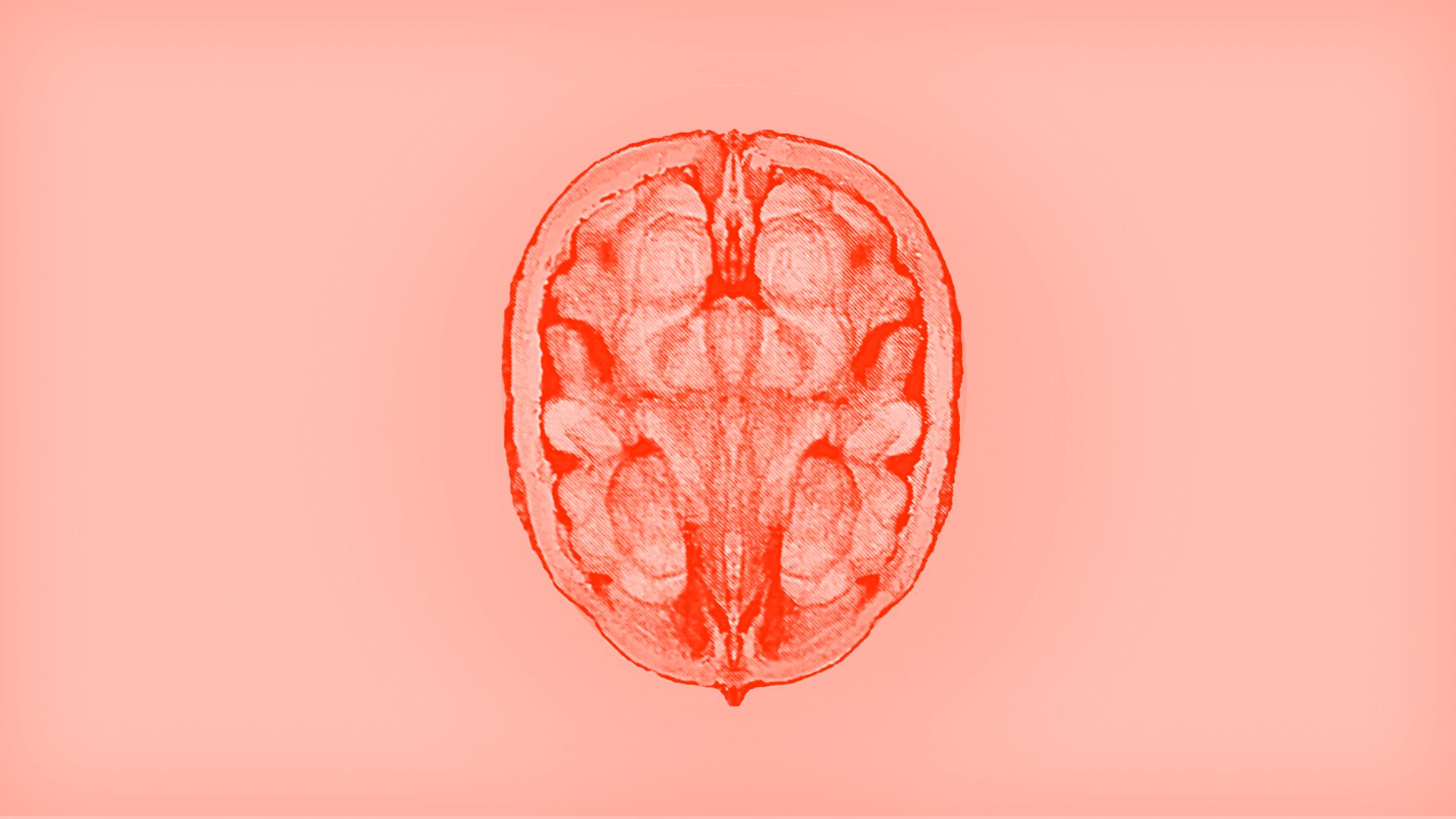 La nouvelle cantine du 6b : le Cerveau